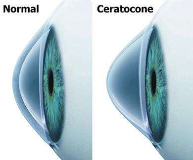 ceratocone-002